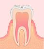 〈C0〉初期のむし歯