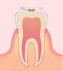 〈C1〉エナメル質のむし歯