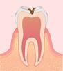 〈C2〉象牙質のむし歯