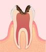 〈C3〉神経のむし歯